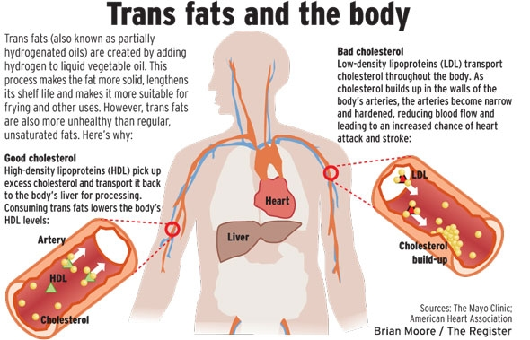 Bad Fat Trans Why