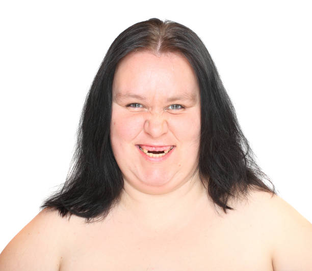 Big Fat Ugly Lady Pictures