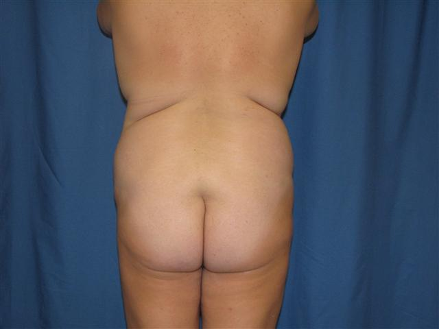 Buttocks Augmentation By Microfat Grafting Pic