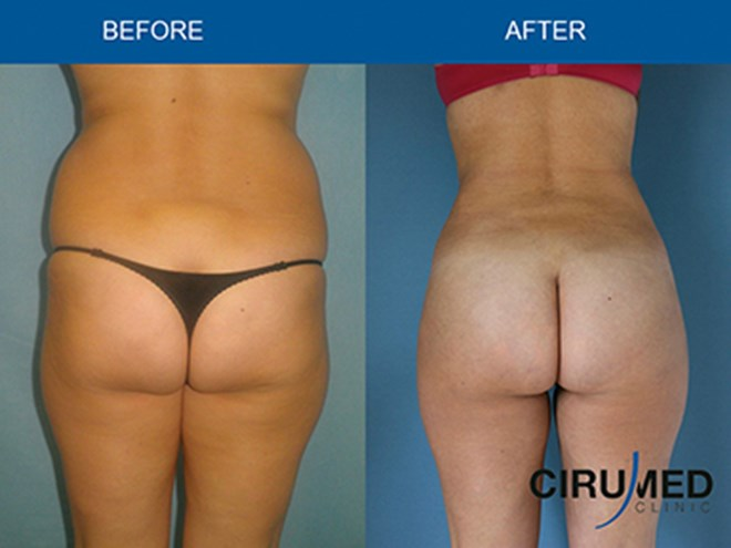 Buttocks Augmentation By Microfat Grafting Pictures