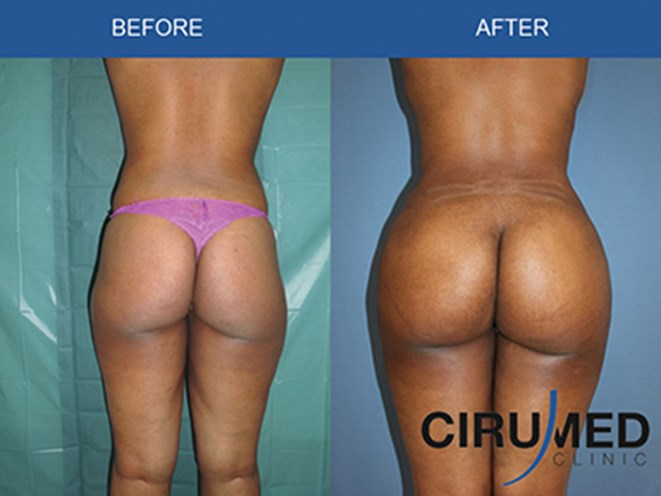 Buttocks Augmentation By Microfat Grafting Gif