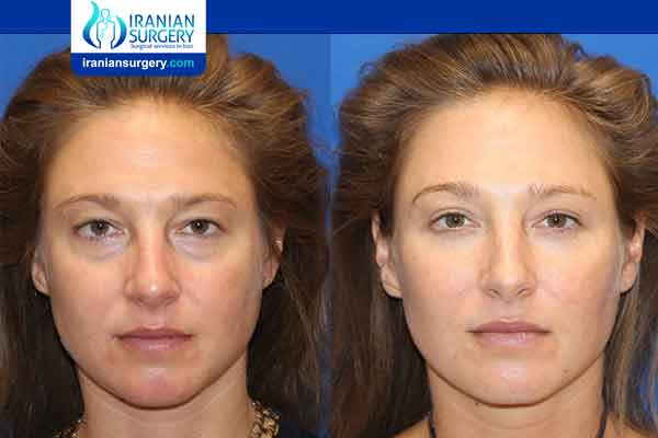 Cheek Fat Injections
