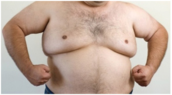 Fat Man With Breast Pics