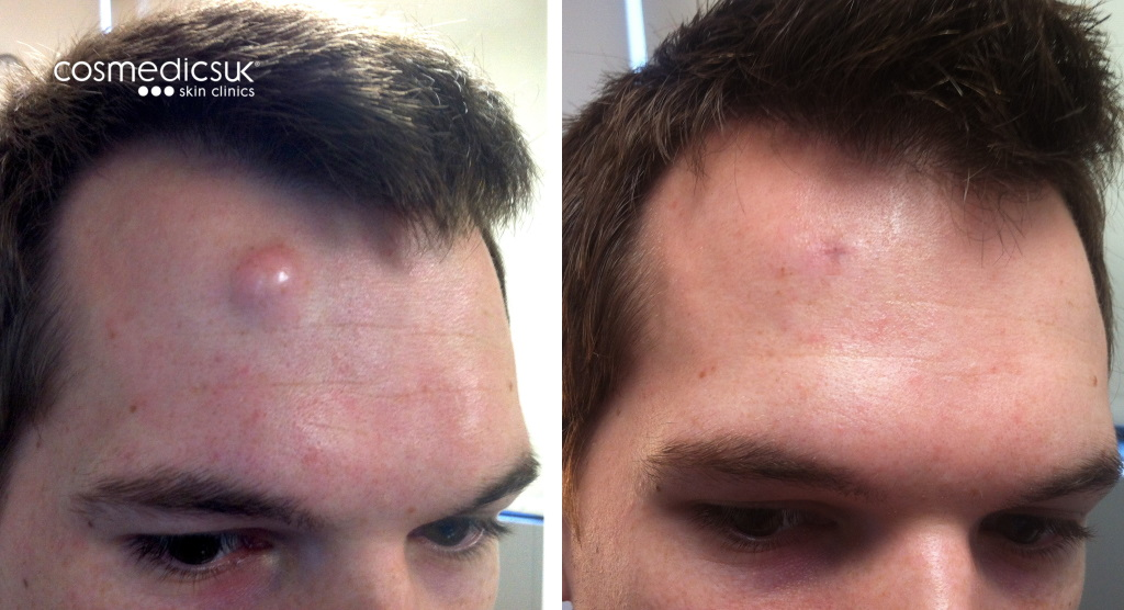 Fatty Cysts On Face Pictures