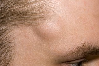 Fatty Cysts On Face Png