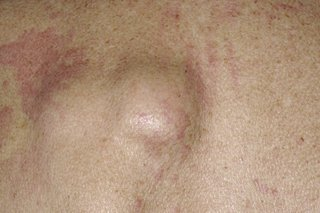 Fatty Cysts On Your Body Pictures