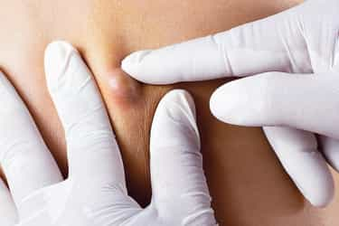Fatty Cysts On Your Body Pics