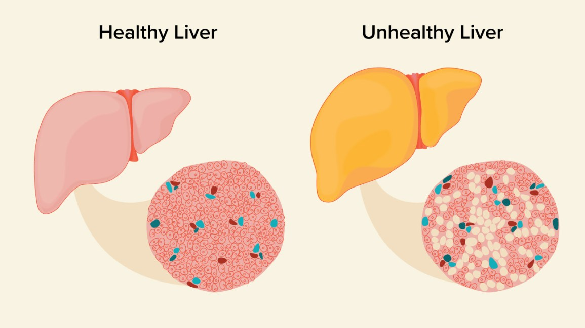Fatty Tissue In The Liver Pictures