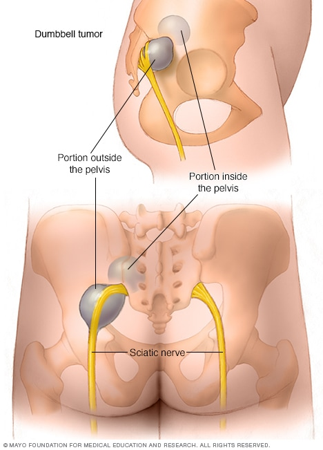 Fatty Tumors In Lower Back HD