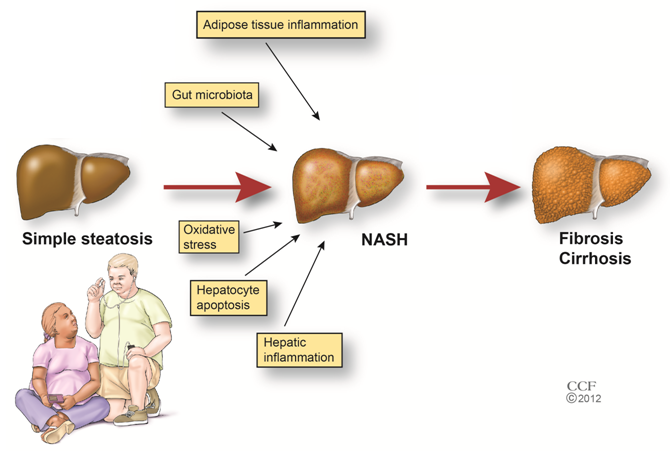 The Cause Of Fatty Liver HD